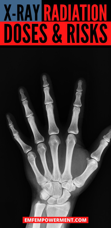 X-Ray Radiation Exposure: Doses & Risks